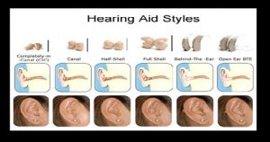 hearing_aids Styles